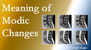 Executive Chiropractic of Iowa sees many back pain and neck pain patients who bring their MRIs with them to the office. Modic changes are often noted.