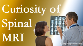 West Des Moines MRIs for spinal stenosis may be revealing…or confusing.