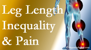 Executive Chiropractic of Iowa checks for leg length inequality as it is related to back, hip and knee pain issues.