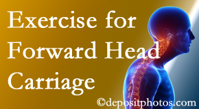 West Des Moines chiropractic treatment of forward head carriage is two-fold: manipulation and exercise.