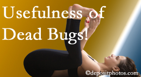 Executive Chiropractic of Iowa finds dead bugs quite useful in the healing process of West Des Moines back pain for many chiropractic patients.