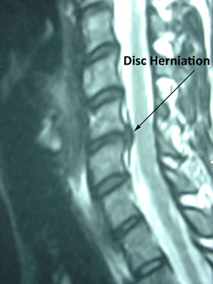 disc herniation in cervical spine