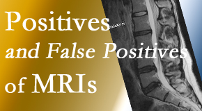 Executive Chiropractic of Iowa carefully chooses when and if MRI images are needed to guide the West Des Moines chiropractic treatment plan.